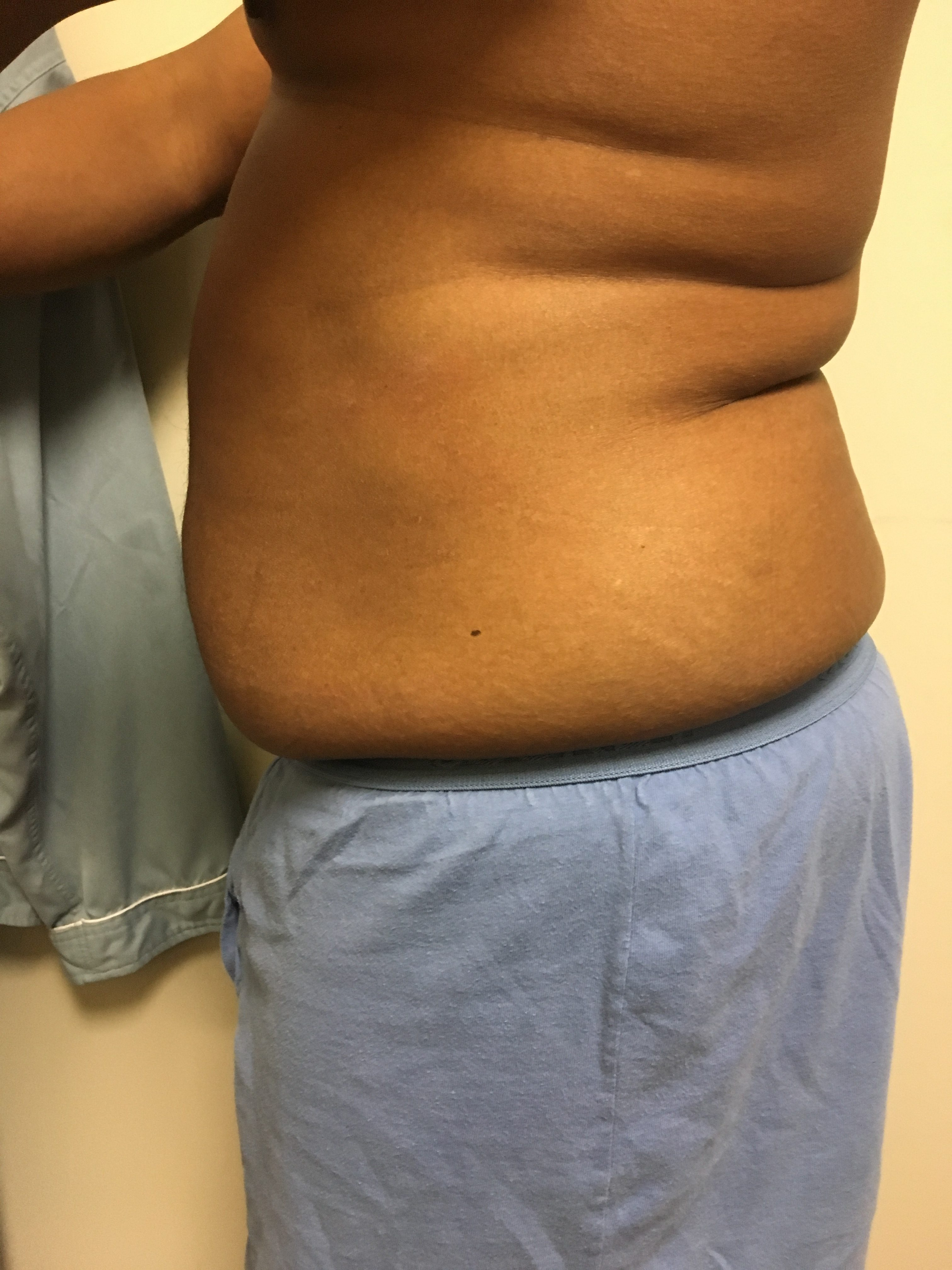 Body Wraps & Contouring in Northern VA